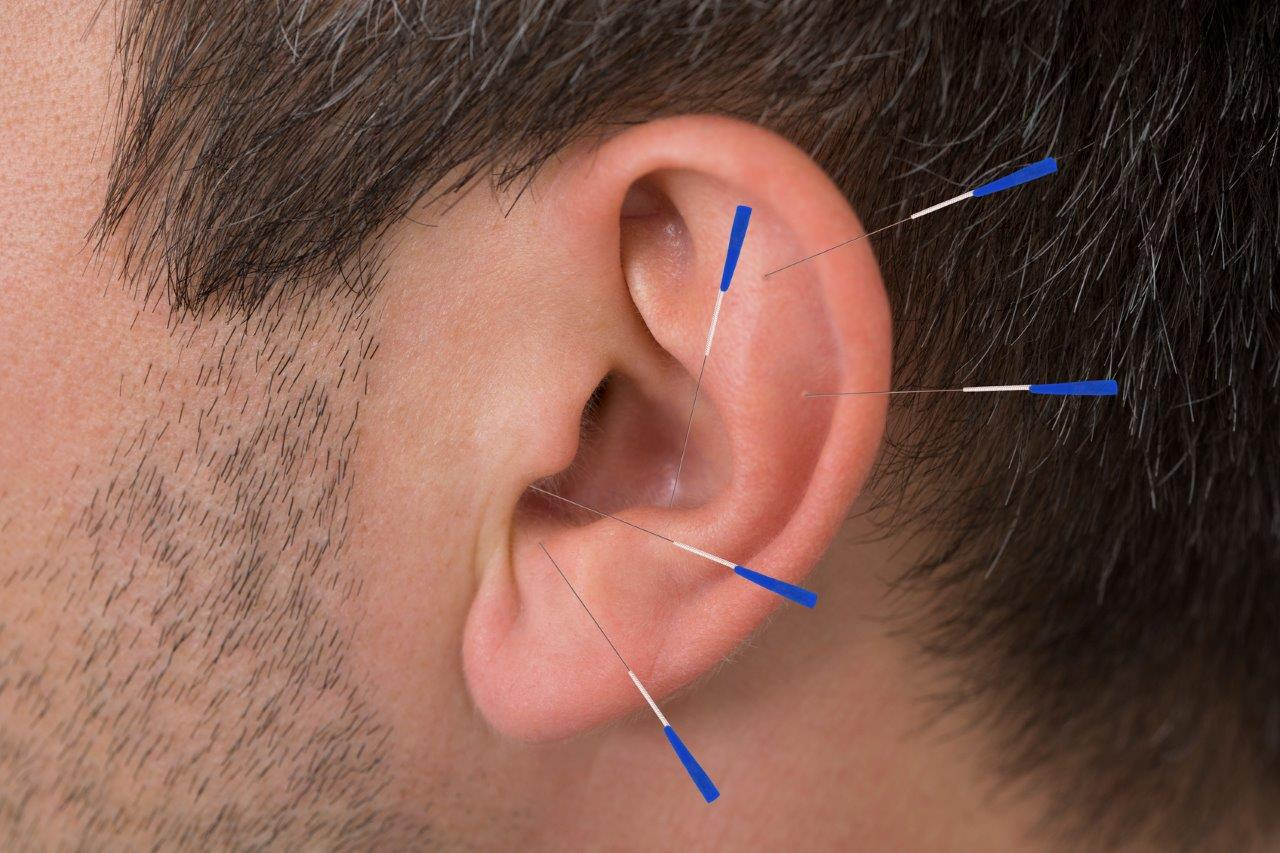 ooracupuncttur